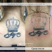 Лазерное удаление тату и татуажа наносекундным и пикосекундным лазерами из г. Киев